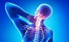 Остеохондроз - симптомы, лечение