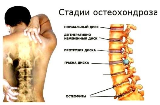 Стадии остеоходнроза
