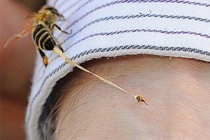 Укус пчелы – что делать, первая помощь при отеке, аллергии