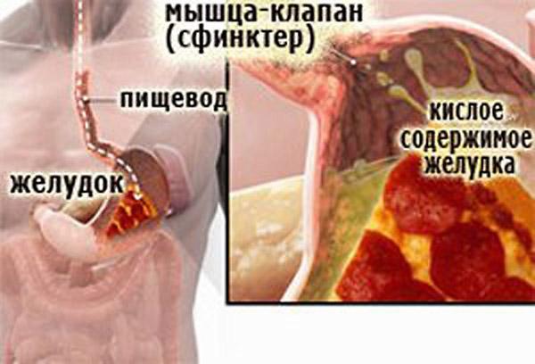 Мышца-клапан сфинктер