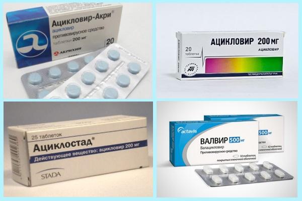 Аптечные препараты от герпеса